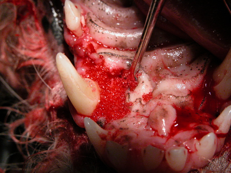 Repaired Pocket with Root Planing and Bone Graft