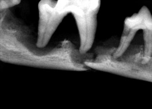 Pathologic Fracture from Periodontal Disease