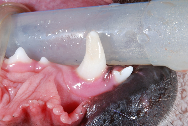 Restored Canine Tooth